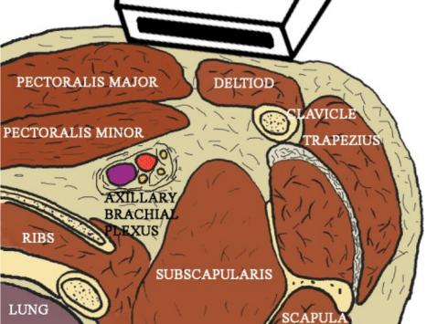 Infraclavicular block