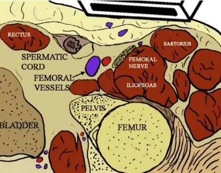 Femoral Block