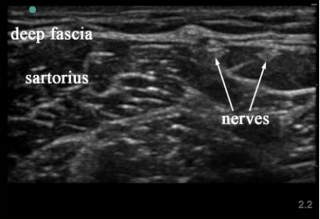 Lateral Femoral Cut Nerve