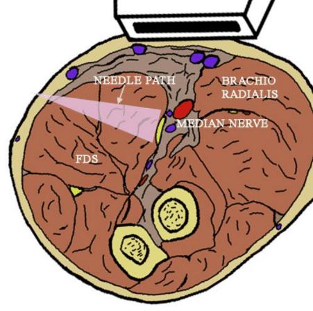 Median Nerve Block