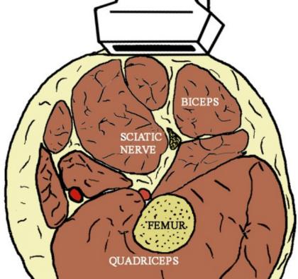 Sciatic Sub Gluteal