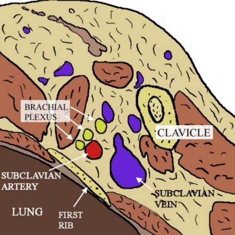 Supraclavicular Block
